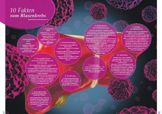 """10 Fakten zum Blasenkrebs im Gesundheitsmagazin """"Wie gehts´s?"""""""